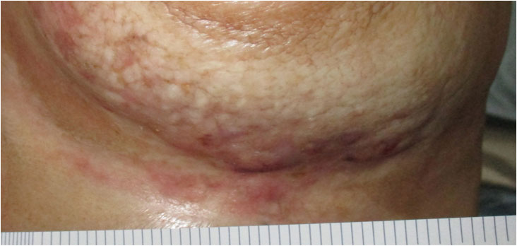 breast-wound-after-hbot